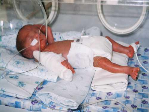 — глубоко недоношенные дети удваивают массу к месяцам, а к году она увеличивается в раз.