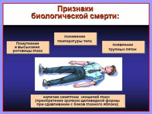 Признаки биологической смерти