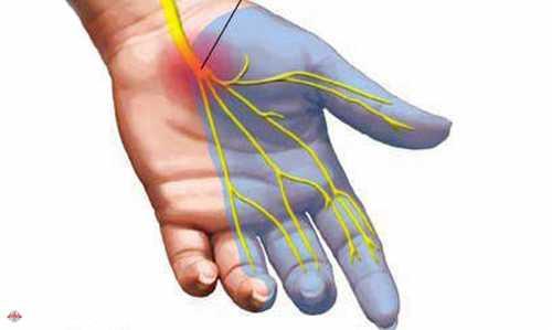 Онемение левой и правой руки