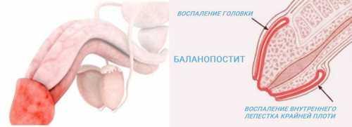 Воспаление крайней плоти у мужчин: симптомы,
